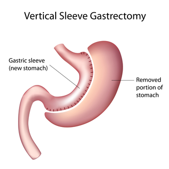 Gastrectomy Sleeve